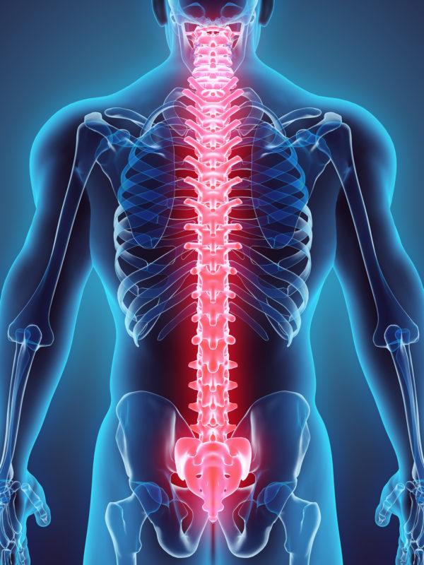 Los Angeles Spine Surgeon